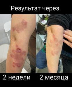 https://ip-onekrd.ru/otzyvy/otzyvy-rezultaty-p